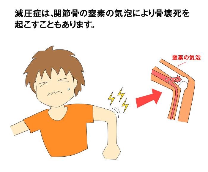 減圧症は、関節骨の窒素の気泡により骨壊死を 起こすこともあります。