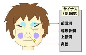 サイナス(副鼻膣)は、前頭洞、蝶形骨洞、上顎洞、鼻膣部分をさします。